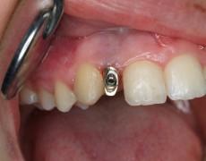 Tratamiento con Implantes Unitarios