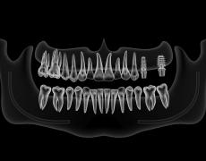 5 falsos mitos sobre los implantes dentales