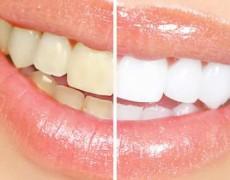 Blanqueado de dientes