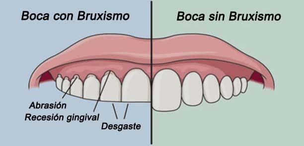 bruxismo dental - Clinica dental Travessera