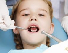 ¿Qué hacer si aparece una caries en un diente de leche?