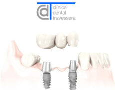 ¿Implantes o puentes dentales?