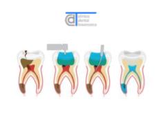 Endodoncia · Preguntas