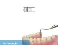 La periodoncia