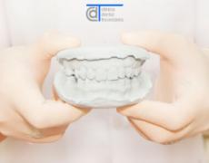 ¿Qué son las prótesis dentales?